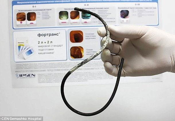 Doctors Forgot 12 inch tube in 50 Year Old Russian Woman's Stomach